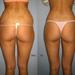 Láser de liposucción